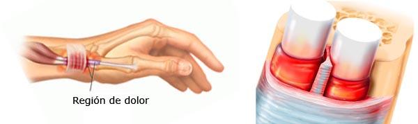 tendinitis de quervain tratamiento acupuntura