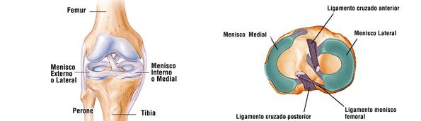 Sintomas lesion menisco