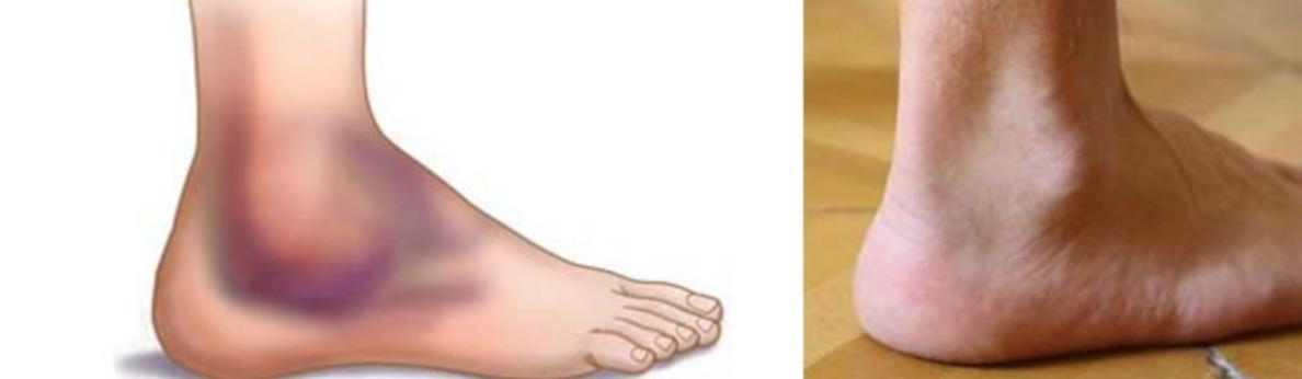 Resultado de imagen para tratamientos kinesiologicos